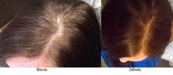 hiusten kasvivärjäys ennen ja jälkeen